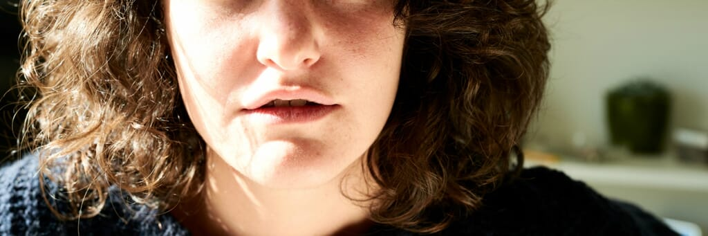 five common tongue conditions mistaken for thrush 1200400