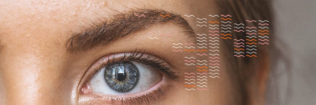 Can myo-inositol help clear my acne?