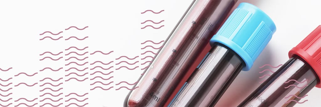 Blood vials HIV testing
