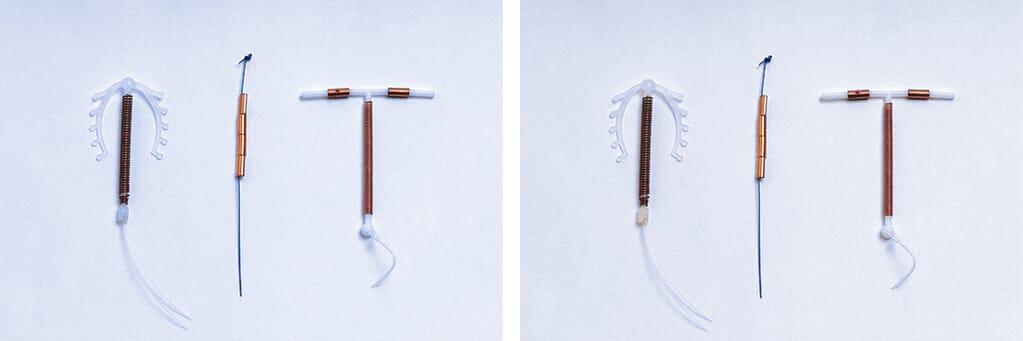 Copper toxicity IUD